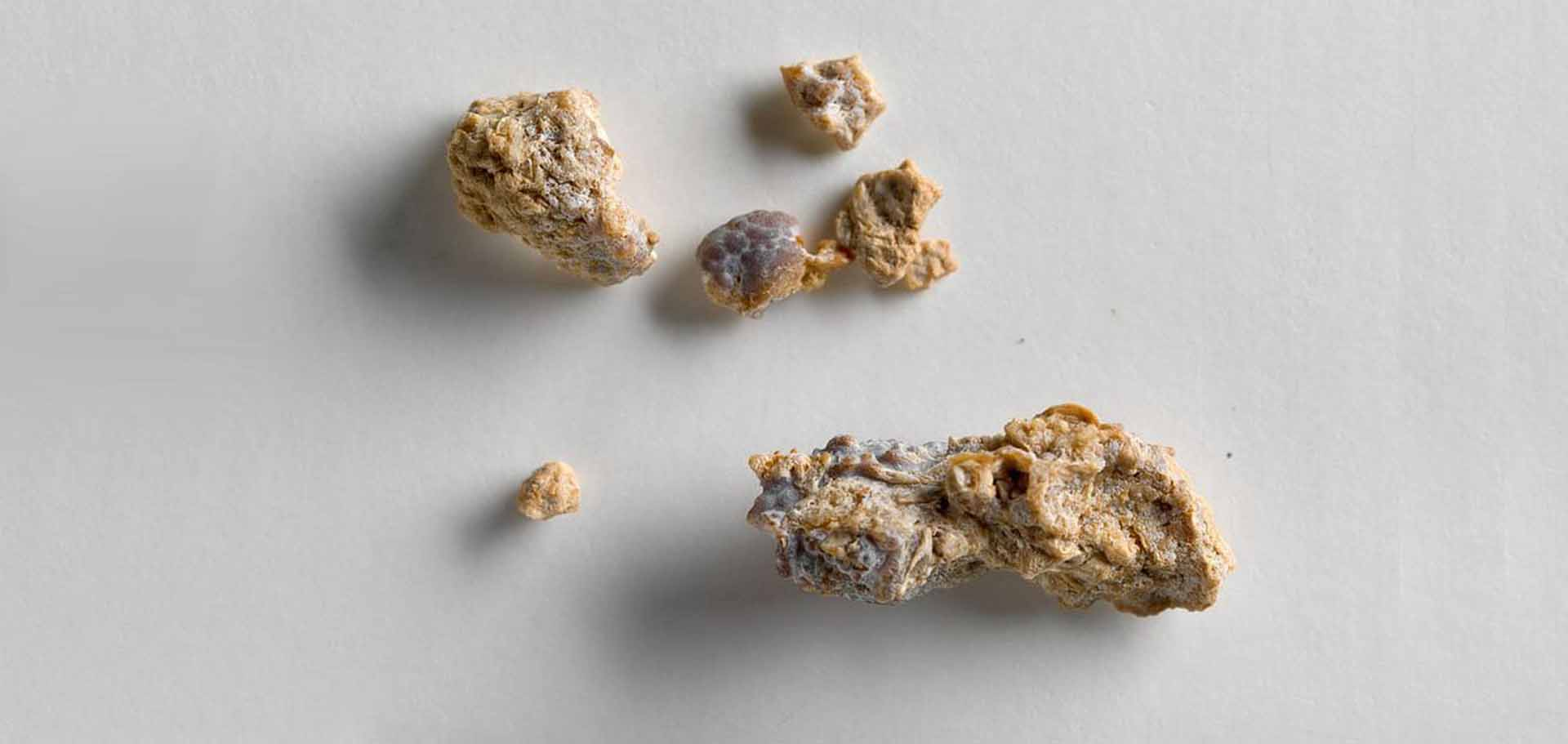 Find Out How To Prevent Kidney Stones